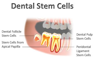 Stem cells from teeth