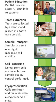 how to save your dental stream cells with store-a-tooth