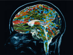 Stem cell therapy for strokes