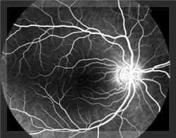 Stem Cells to Help Save Sight of Diabetes Sufferers