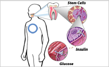 Potential stem cell therapy for diabetes