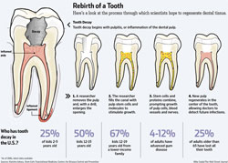 Rebirth of a tooth thanks to stem cells