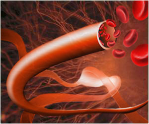 stem cell vein transplant