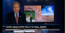 Stem cells heal joints